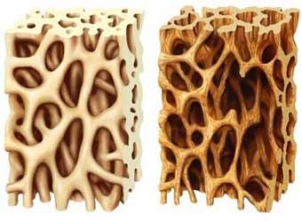 پاورپوینت پوکی استخوان osteoprosis